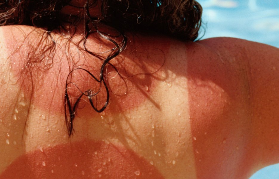 Feeling the (Sun) Burn? | Knoxville, TN Walk-In Clinic