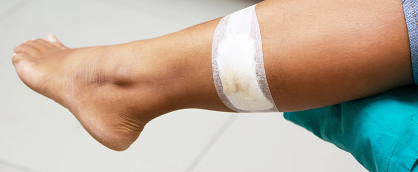 When to Seek Medical Attention for Your Laceration